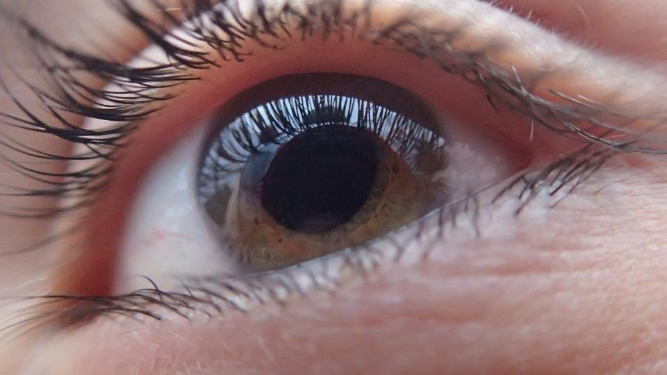 oog Glaucoma Glaucoom